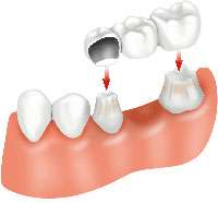 Dental Bridges Dental bridges