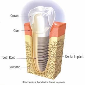 Implant Diagram Mini implants / Implants