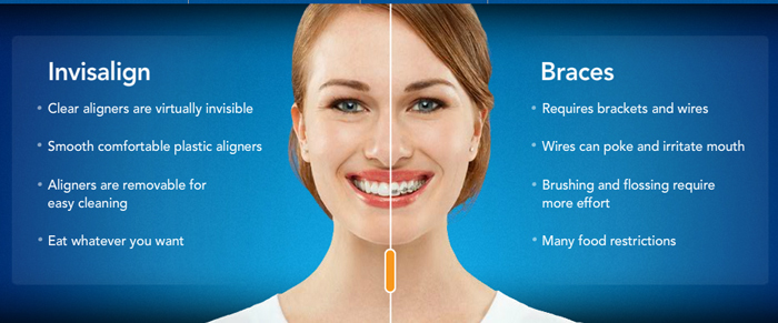 Invisalign-compare-braces-a
