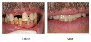 Partial-Denture-Before-Afte