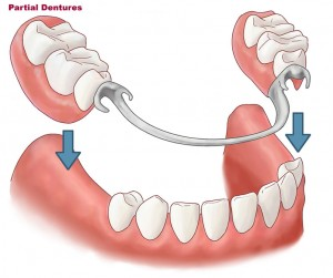 Partial denture Diagram 300x251 Partial and Removable Dentures