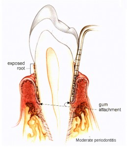 Periodontal-disease-Diagram