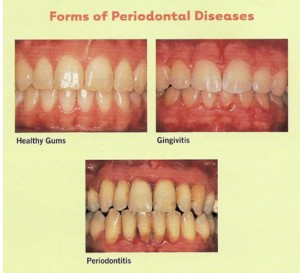 Periodontal disease forms 300x273 Gum Treatment / Periodontics