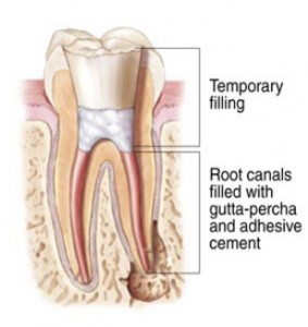 RootCanal1 283x300 Root Canal