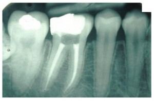 RootCanal2 300x198 Root Canal