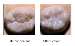 Sealants before after Sealants / Flourides